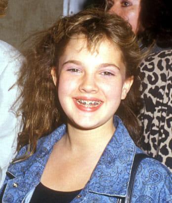 Drew Barrymore fogszabályzóval.