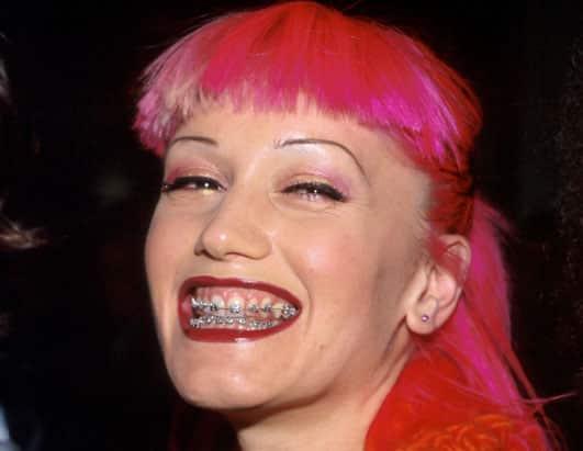 Gwen Stefani fogszabályzóval.