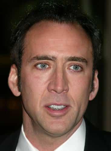 Nicolas Cage fogszabályzóval.
