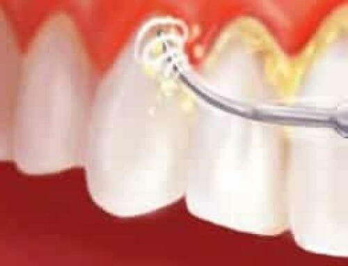 A fogkő kialakulása és a fogkőszedés menete