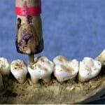 Ősi mesterség – 9000 évvel ezelőtt már praktizáltak fogorvosok