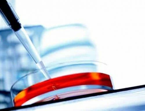 Ínygyulladás esetén az immunsejtek pusztítják a csontállományt