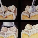 Barázdazárás – Így előzd meg hatékonyan a fogszuvasodást!