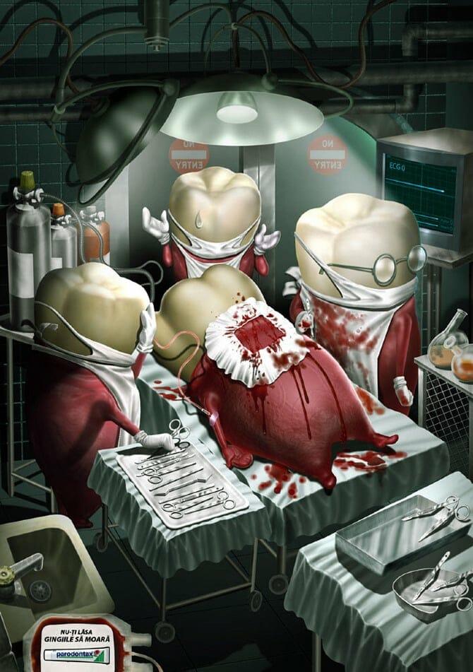A páciens minden jel szerint elvérzett. - Parodontax reklám.