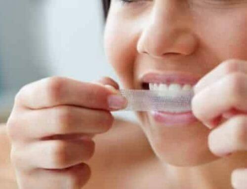 Az otthoni fogfehérítés veszélyes lehet