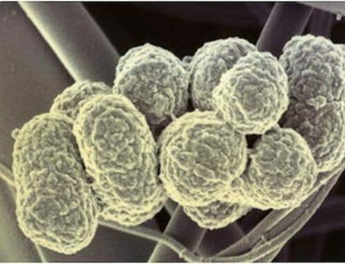 Az ínygyulladást okozó  baktérium manipulálja a szervezetünket