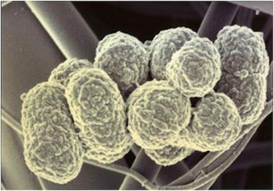 P.gingivalis a mikroszkóp alatt. /Kép: Tumblr.com/