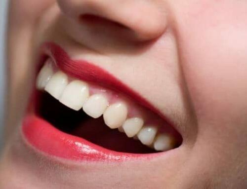 Hogyan változtatható meg a fogak formája?