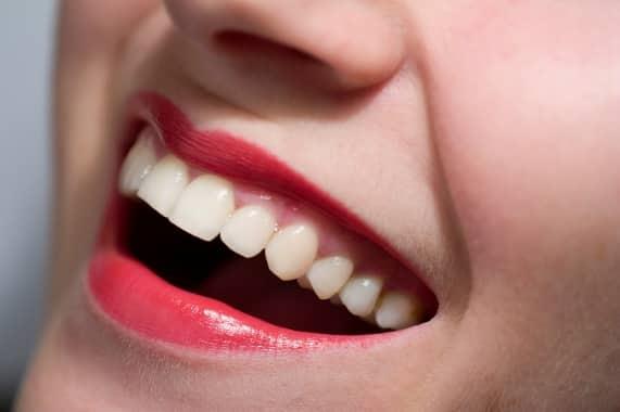 fogak formaja