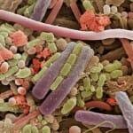 Mikroszkóp alatt: a nyálban rengeteg baktérium él, melyek között előfordulnak jótékonyak és kártékonyak egyaránt.