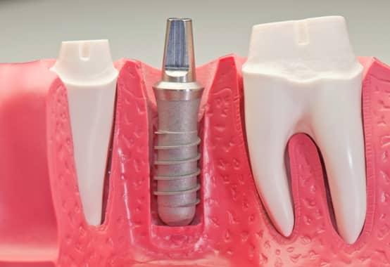 szajsebeszeti beavatkozasok fogaszat implantacio