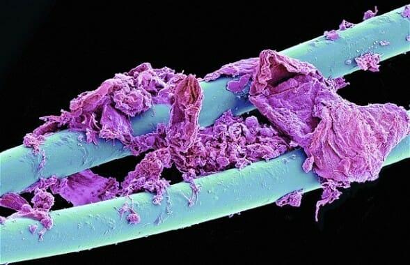 Így néz ki mikroszkóp alatt a fogselyem: a lila területek a plakkot jelzik, ami hozzáragadt a fogselyem kék szálához.