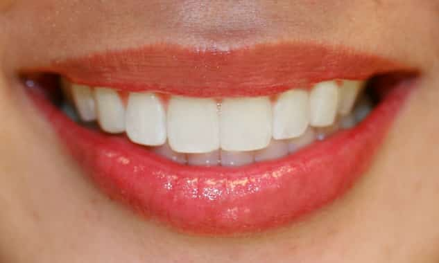 fogszuvasodas oka tunete megelozese fogaszat