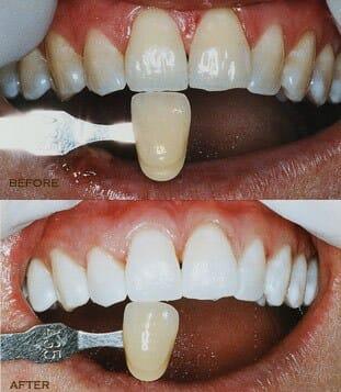 Lézeres fogfehérítés előtt és után. /Kép: eshomdds.com/
