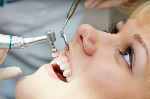 fogkoszedes tisztitas gyakorisaga