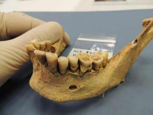 szajuregi bakteriumok tipusa fogaszat