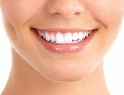 Mitől szürkül el a fogíny? Okok és kezelési módok