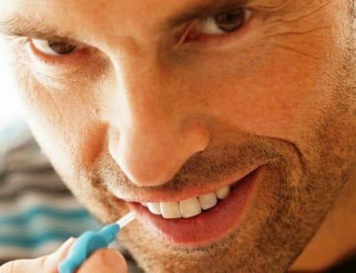 A fogászati implantátumok tisztítása