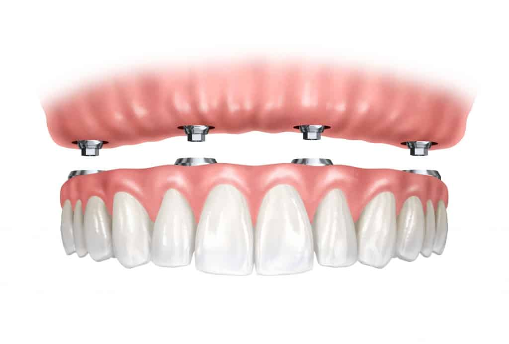 A teljes fogsor alatt lévő implantátumokhoz könnyen hozzáférhetünk.