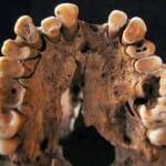 A fogszuvasodás már tizennégyezer éve is létező panasz volt