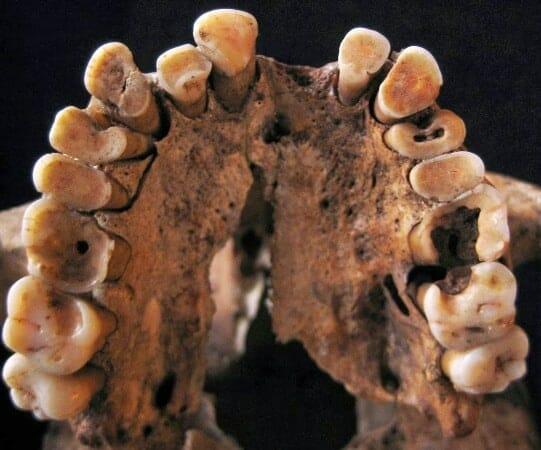 fogszuvasodas osember
