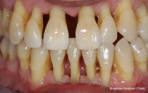 Fotó: Brighton Implant Clinic.