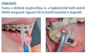 curaprox fogkoztisztito