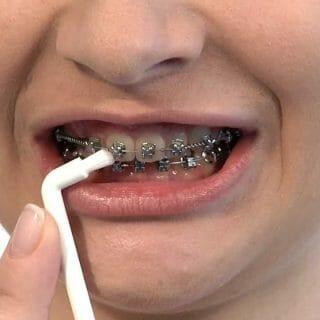 A fogszabályzó és az alatta lévő fogak megfelelő tisztításának kulcsfontosságú eleme az egycsomós fogkefe használata.
