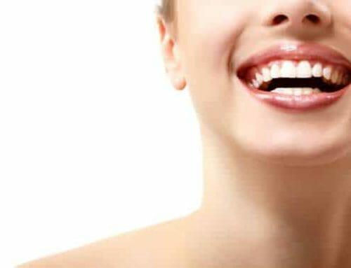 Alkalmas vagy a fogfehérítésre? Segítünk eldönteni!