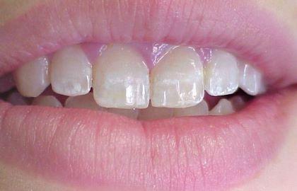 A fluorózis legjellemzőbb tünete a fogzománc sárgás, fehéres elszíneződése. /Kép: doctorspiller.com/