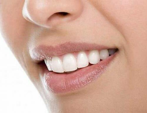 A fogzománc sérülésének 3 leggyakoribb oka