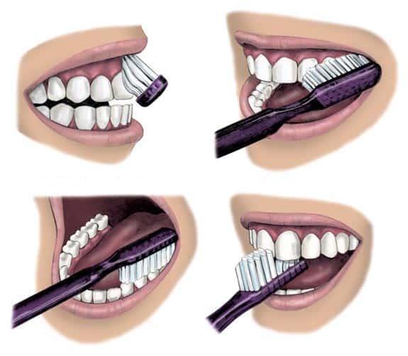 A legegyszerűbb fogmosási technika: a  külső felszíneknél tartsuk a fogkefénket 45 fokos szögben és haladjunk körkörös mozdulatokkal, ezután jöhetnek a belső felszínek, majd a rágófelszínek. /Kép: Pachemdental.com/