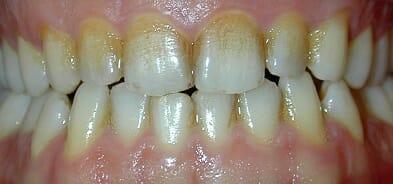 elszinezodott fogak