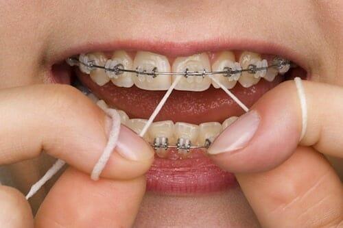 Fogselyemmel tökéletesen tisztán tarthatjuk a fogszabályzó és a fogzománc érintkezési területeit.