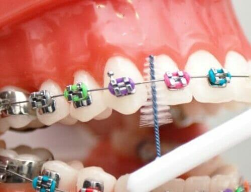 10 elengedhetetlen szájápolási eszköz fogszabályzóhoz