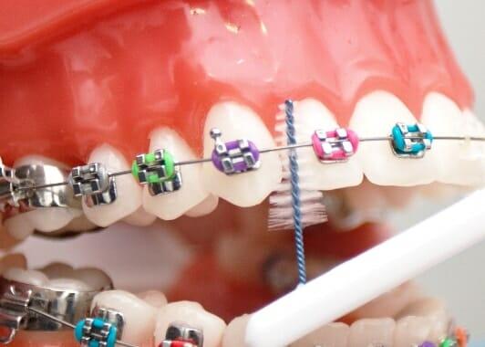 A fogszabályzó tisztán tartása nem csak esztétikai kérdés, ilyenkor nagyobb a fogszuvasodás kialakulásának esélye. /Kép: Hunter Valley Orthodontics/