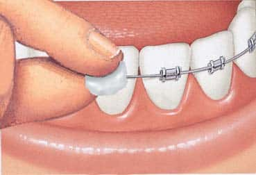Viasz felhelyezésével csökkenthetjük a fogszabályzó okozta irritációkat. /Kép: Braces4Oxford.co.uk/