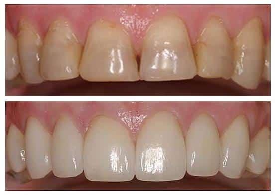 Cirkónium koronákkal helyreállított, természetes hatású mosoly. /Kép: Orthosmiledental.com/