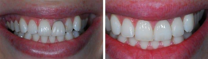 Cirkónium koronával helyreállított front fogak. /Kép: Didimdentist.com/