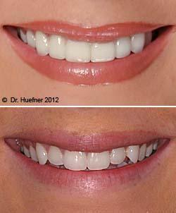 Hegyes szemfogak helyreállítása porcelán héjakkal. /Kép: Cosmetic-dentistry-and-porcelain-veneers.com/