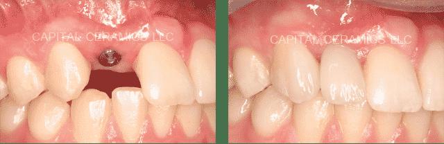 Implantátumra épített szóló cirkónium korona. /Kép: Capitalceramicsllc.com/