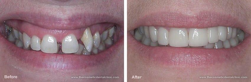 Kiálló szemfog és teljes felső fogsor korrigálása koronával. /Kép: Thecosmeticdentalclinic.com/