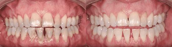 Fogkőszedéssel és polírozással láthatóan fehérebbé tehetjük a fogainkat. /Kép: Shelbourneclinic.ie/