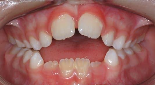 Ujjszopás miatt rendellenesen nőtt alsó és felső fogak, ezt nevezzük nyitott harapásnak. /Kép: Orthodontists.co.nz/