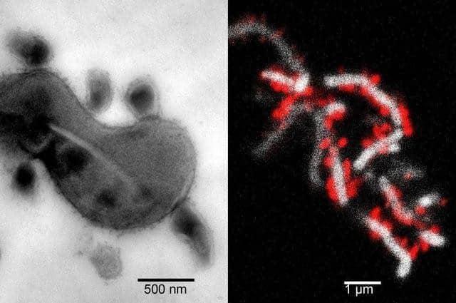 Szoros fizikai kapcsolat a TM7x és az XH001 között (bal oldal). A vörös TM7x sejtek a fehér XH001 felületére tapadnak. /Kép: Kaliforniai Egyetem Fogorvostudományi Kar/