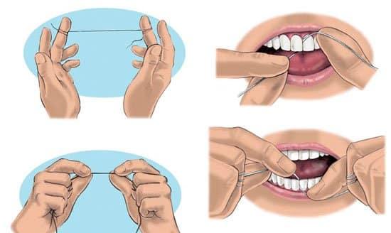 A fogselyem használatának lépéseit el kell sajátítanunk, ha hatékonyak akarunk lenni. /Kép: Dentalolujic.it/
