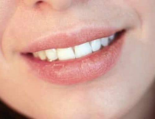 11 meglepő tipp szájszárazság ellen