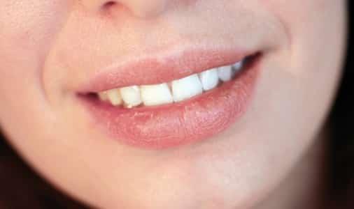 A szájszárazság gyakori tünete a kicserepesedett ajak. /Kép: illusztráció, Baldwinsmiles.com/
