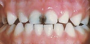 A cumisüveg miatti fogszuvasodás általában az első metszőfogak területén indul meg. /Kép: Seasons-of-smiles.com/