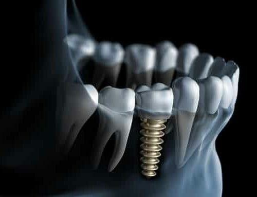A fogászati implantátumok problémái – 8 figyelmeztető tünet